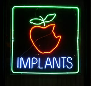 dental Implants apple