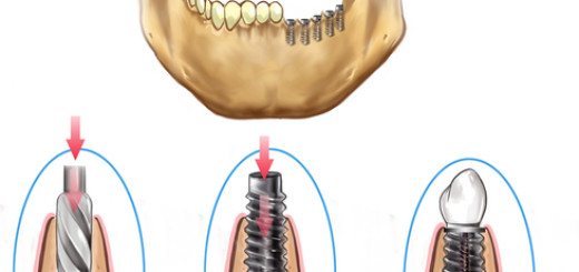 Implant placement sequence into jaw