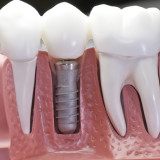 Implant adjacent teeth with crowns model