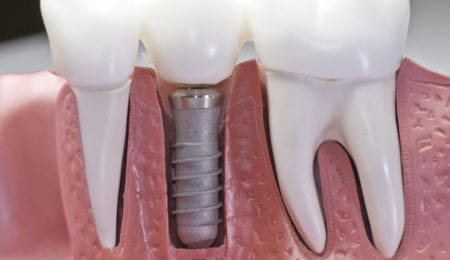 Factors to be remembered when using dental implants in children