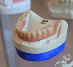 Types Of Dental Prosthetics And Their Installation Stages